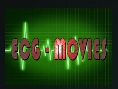 How to Install ECG Movies Add-on Kodi 17 Krypton pic 1